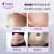 孕腹宝微晶精华淡化妊娠期纹孕妇产后祛纹妊辰霜油产后修护肥胖纹